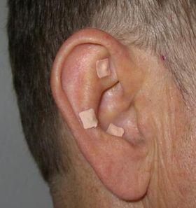 Øreakupunktur. Permanente øre akupunkturnåle dækket af plaster